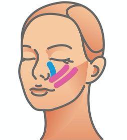facetaping, plastrowanie twarzy