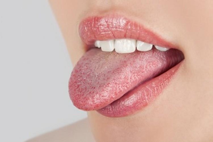 Zbadaj swój język