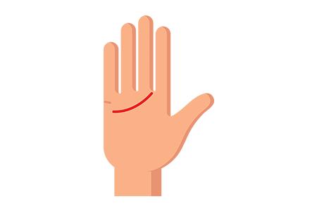 Linia serca zaczyna się nisko, poniżej kostki upodstawy małego palca.