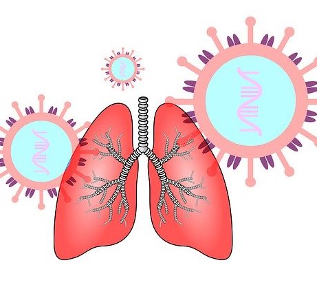 koronawirus, chore płuca